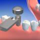 Видео по работе с имплантатами Radix-IIS
